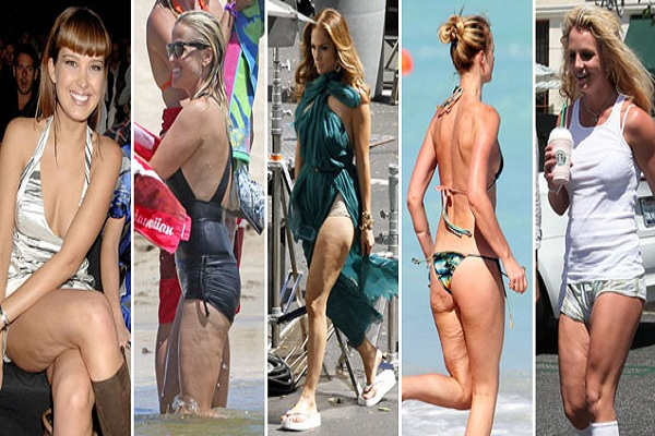 celebrities with cellulite, celebrity cellulite, celebrity cellulite legs, celebrities cellulite 2015, famous celeb cellulite, female celebrity with cellulite