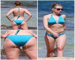 Scarlett Johansson – Celebrities with Cellulite